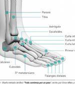 Fracturas por estrés en el pie de corredores