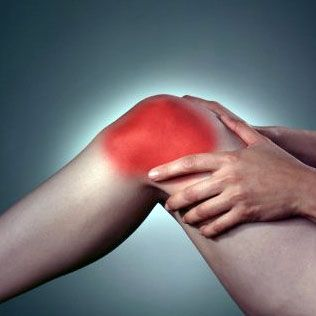 El síndrome de la cintilla iliotibial
