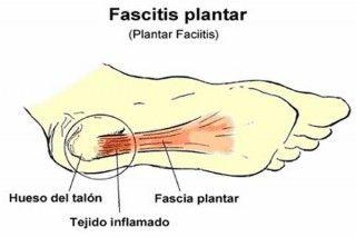 La fascitis plantar