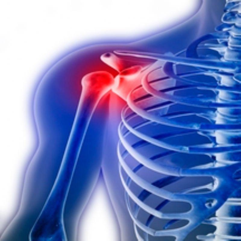 Subluxación de hombro