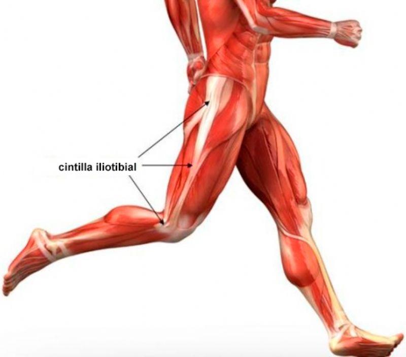 Lesiones del Corredor: Síndrome de la cintilla iliotibial