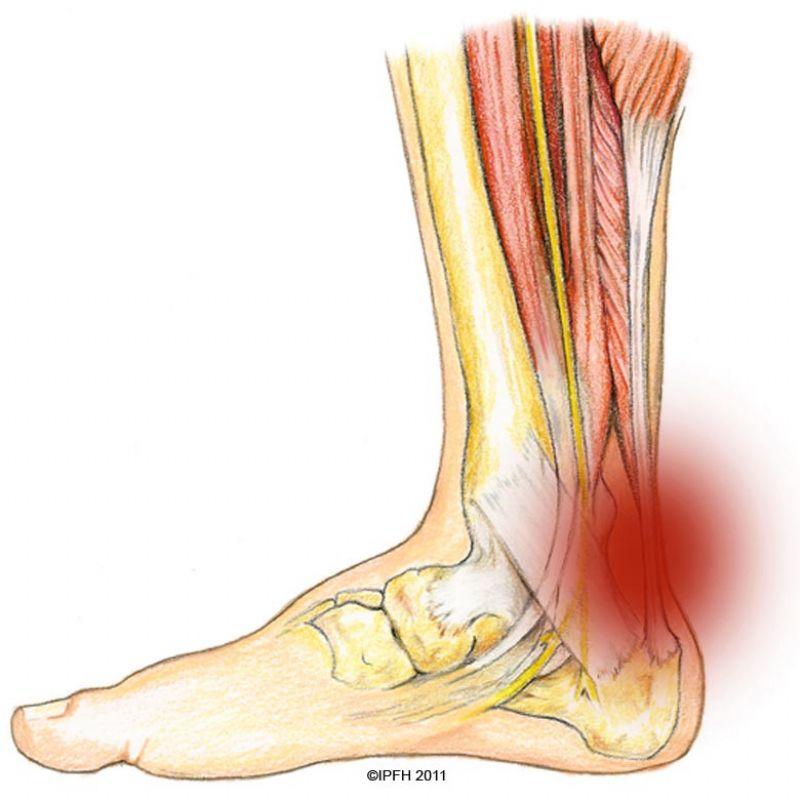 Lesiones habituales en el pie y sus síntomas más característicos