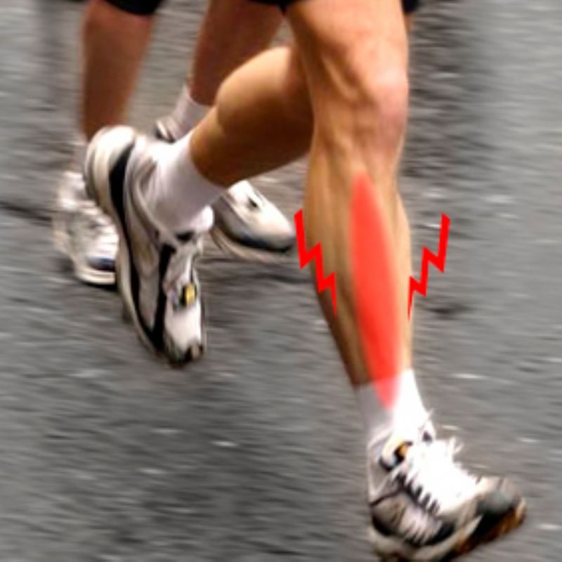Lesiones del Corredor: Periostitis de la tibia