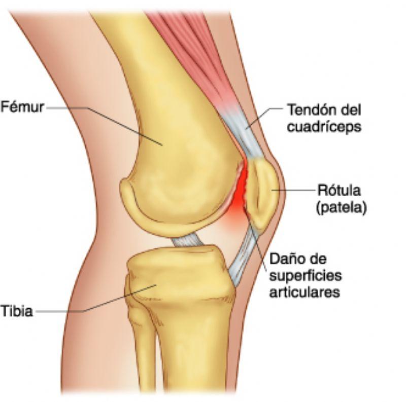 Lesiones del Corredor: Síndrome Femoro-Patelar (SFP)