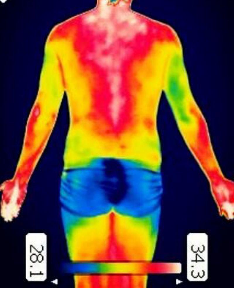 Herramientas de valoración de lesiones: Termografía